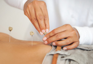 using acupuncture for fertility treatment
